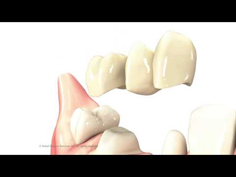 3-Unit Dental Bridge | The Center for Cosmetic Dentistry