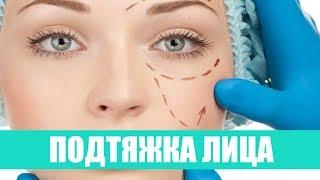 Операция по подтяжке лица/Фейслифтинг. Хирург Батюков Дмитрий