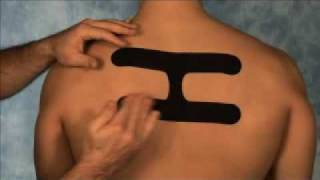 SpiderTech Upper Back/Postural Taping Instructions