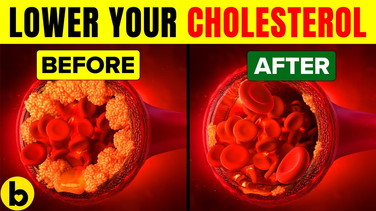 8 Foods That Can Lower Your Cholesterol Level