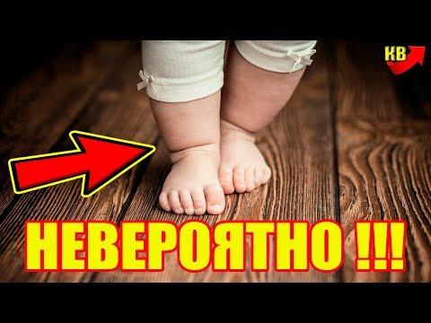 Новорожденный ребенок пошел сразу после родов! Видео