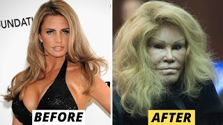 15 Celebrity Plastic Surgery Disasters
