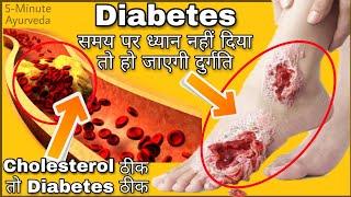 Diabetes को करेंगें अब जड़ से खत्म |मधुमेह,डायबिटीज,शुगर| Sugar Ab Nahi Tik Payega |2 Natural Remedy