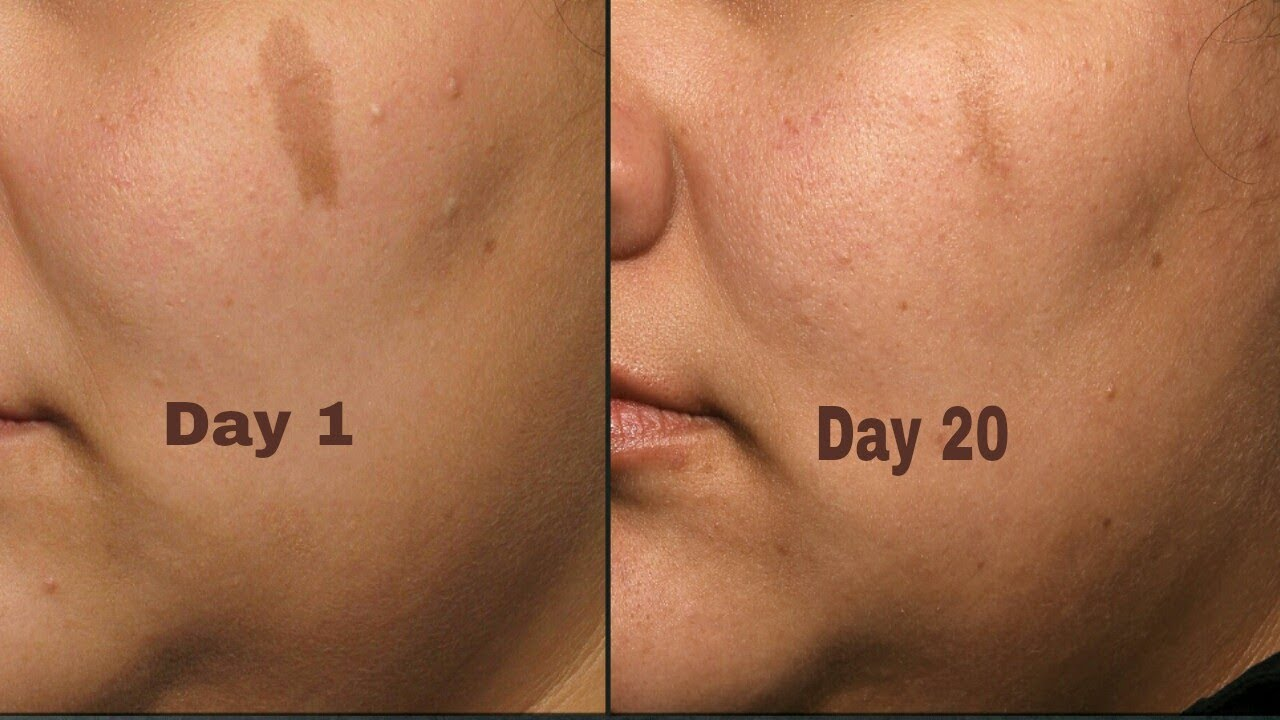 Scarend Gel Best Scars And Dark Spots Remover Youtube