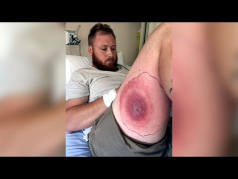 N.S. man recovering from suspected brown recluse spider bite