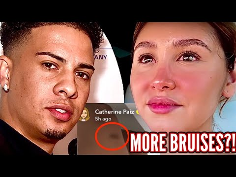 IS CATHERINE McBROOM OKAY?! TOXIC ACE Family, Weird Bruises, SCREAMING Outburst, CHEATING!