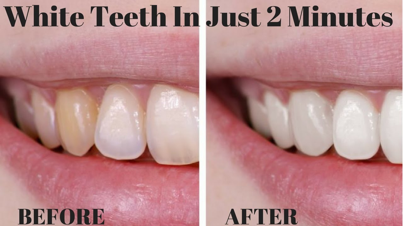 How To Whiten Your Teeth In Just 2 Minutes Easy Simple Home