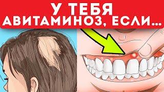 СРОЧНО! 7 самых главных признаков авитаминоза!