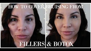 HOW TO COVER BRUISING FROM FILLERS & BOTOX
