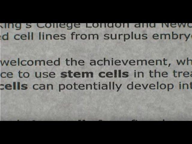 A Stem Cell Story