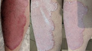 Dead Sea:  Days 6 through 10 progression on psoriasis [Psoriasis]