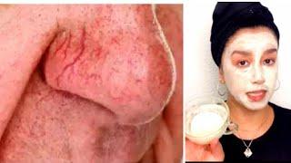 Cómo eliminar las venas rojas del rostro ?