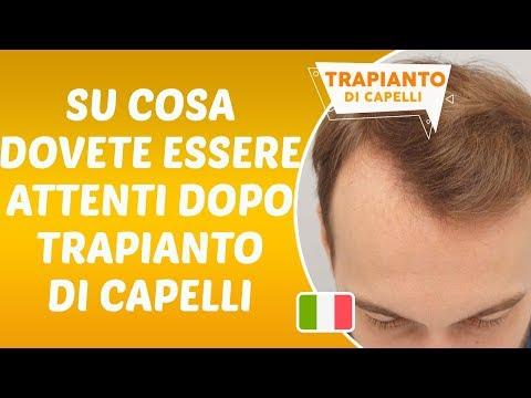 Su cosa dovete essere attendi dopo Trapianto di Capelli - Dr. Hamid AYDIN