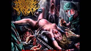 Internal Devour- Stench of Flesh (pre-pro)