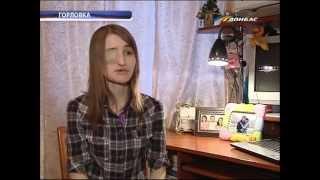 ТК Донбасс - Помогите девушке вернуть прежний облик!
