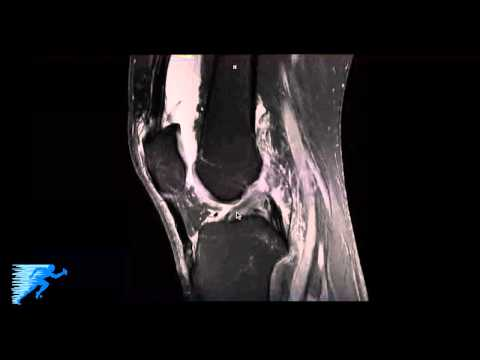 How to Read Knee MRI of FCL (LCL) Tear | Complex Knee Specialist | Vail, Colorado thumbnail