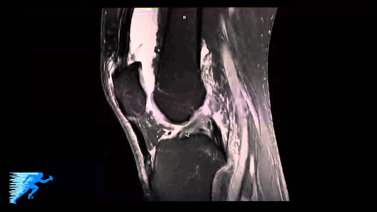 How to Read Knee MRI of FCL (LCL) Tear | Complex Knee Specialist ...