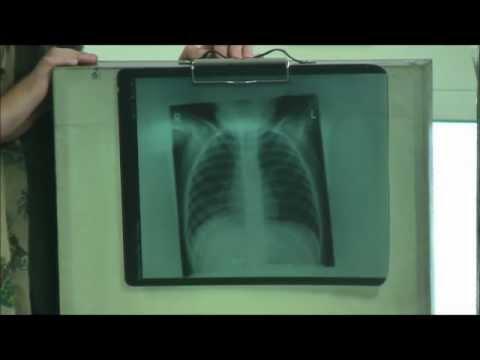 Teddy Bear Hospital Leeds - X-ray Station