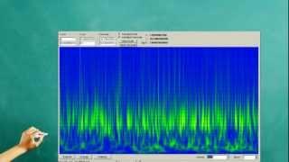 00007 HISTÓRIA DA ELETRENCEFALOGRAFIA.OFICINAS DE EEG sinapsy.com.br .