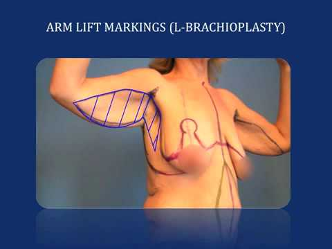 Arm Lift: Plastic Surgery after Weight Loss