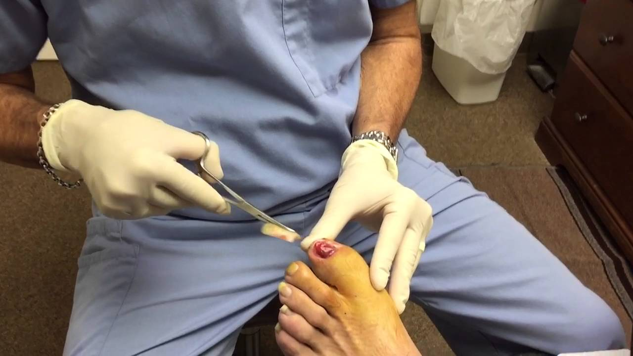 Lifted toenail injury removal - YouTube