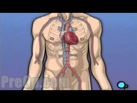 Coronary Artery Bypass Graft (CABG) Heart Surgery PreOp® Patient Education Medical video