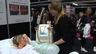Antonia Mariconda 'CoolSculpting' Anti-Ageing Show interview Thumbnail