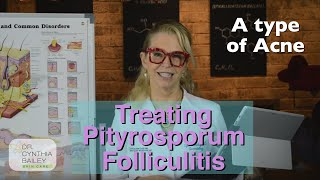Treat Pityrosporum Folliculitis [Dermatologist's Tips] (2019)