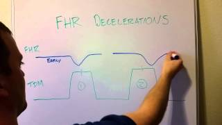 Fetal Heart Rate Decelerations (Early, Late, Variable)