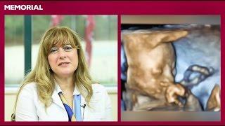 23 haftalık gebelik döneminde neler oluyor?