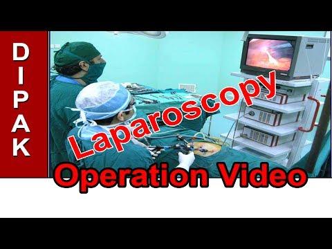 Laparoscopy Surgery - Alka Hospital