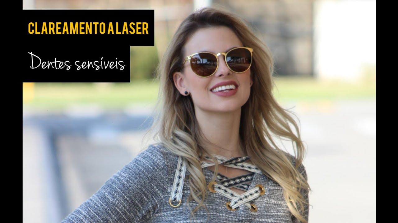 Clareamento A Laser Em Dentes Sensiveis Como Funciona Passo A