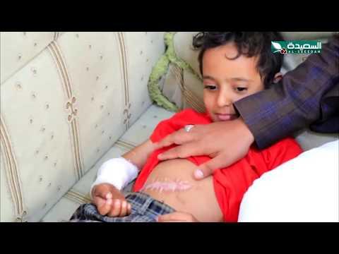 سنابل الخير - إياد طفل في السابعة فقد القدرة على التحكم بيديه لأخطاء طبية  4-11-2019م
