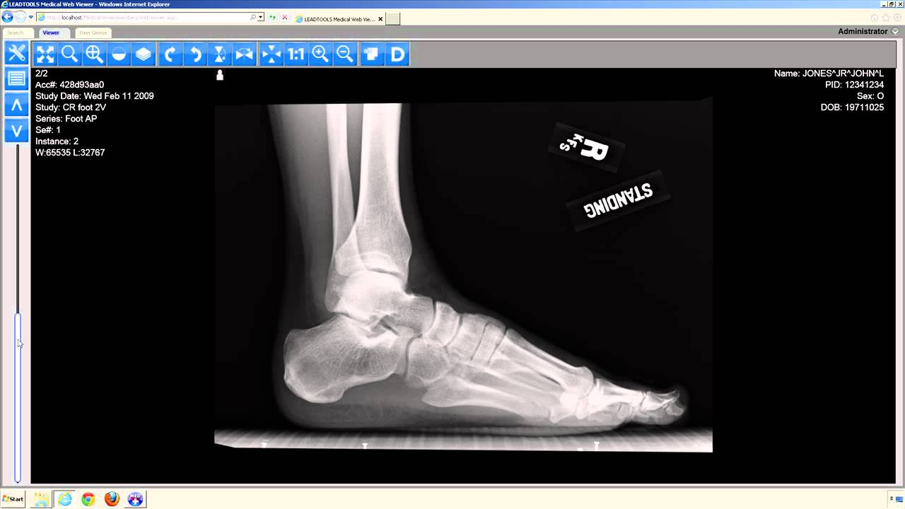 Using the HTML5 Medical Web Viewer
