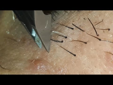 Trich Hair Pulling - Plucking My Boyfriend's Facial Hair MASSIVE Black Juicy Roots Super Satisfying