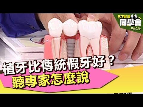 植牙比傳統假牙好?聽專家怎麼說【57健康同學會】第619集 2012年