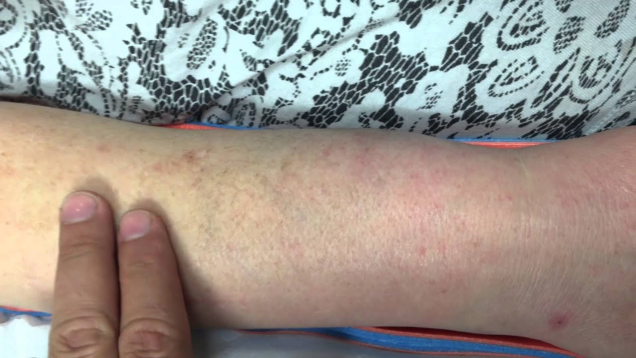 arm trauma and hematoma - YouTube