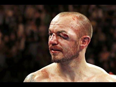 【これはグロいな、閲覧注意だな】ボクシング史に残る最悪のケガまとめ集