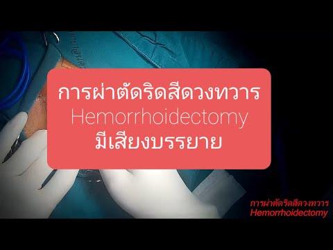 การผ่าตัดริดสีดวงทวาร hemorrhoidectomy มีเสียงบรรยาย
