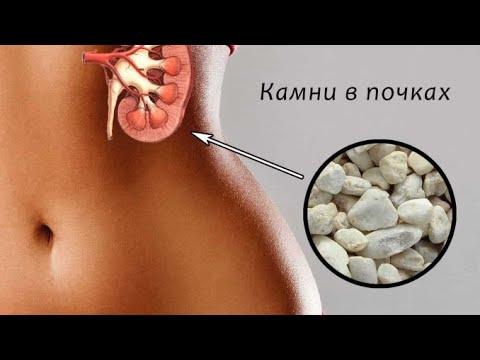 Дробление камней (ДЛТ): эффективно и безболезненно!