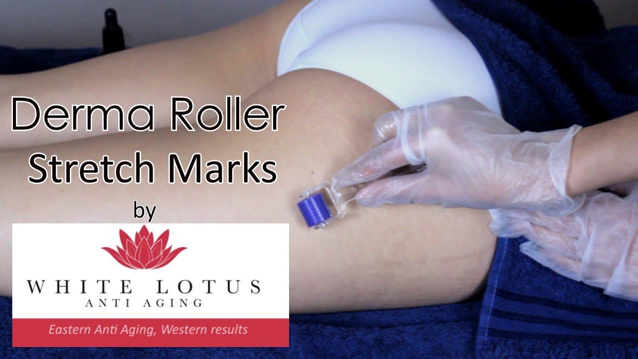 skin roller stretch marks