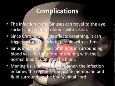 Chronic Sinusitis - YouTube