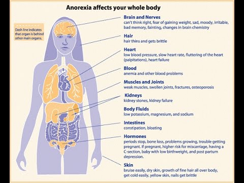 bulimia nervosa compared to anorexia nervosa