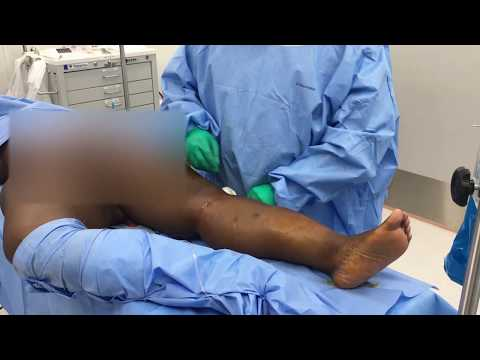 Preoperative Views of Calf and Ankle Prior to Liposuction part 2
