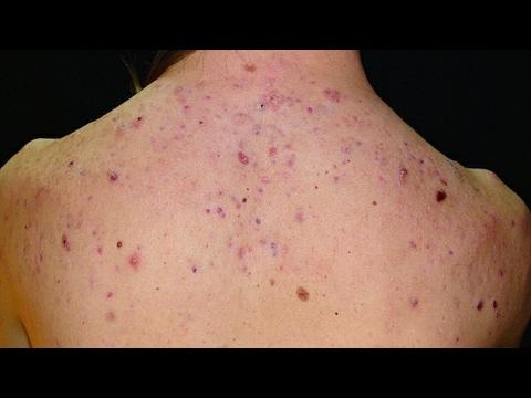 Como Eliminar El Acné De Tu Espalda Remedio Casero Youtube