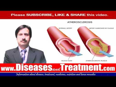 Атеросклероз - симптомы, лечение, профилактика, причины