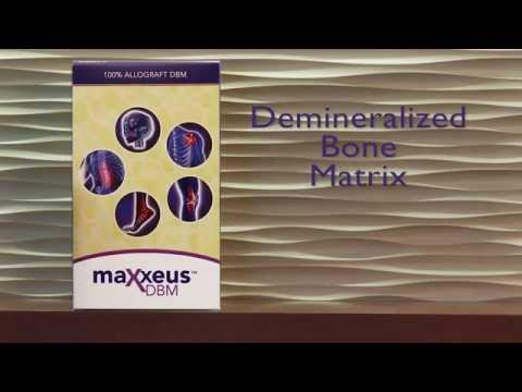 Maxxeus DBM Putty Video