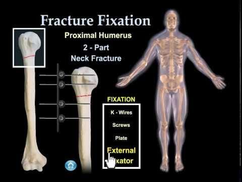 Перелом шейки плеча - причины, симптомы, диагностика и лечение