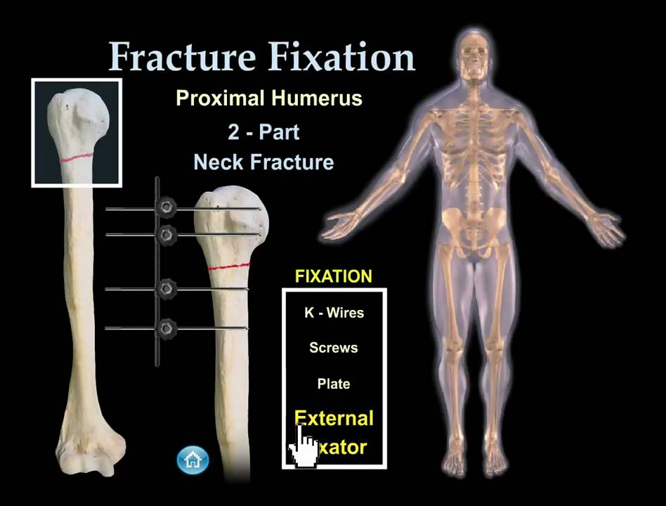 Fracture Fixation Animation - Everything You Need to Know - Dr. Nabil Ebraheim
