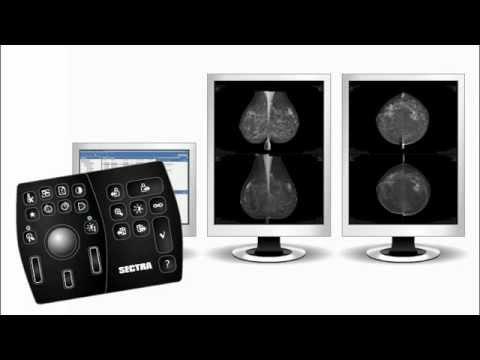 sectra-breast-imaging-ris/pacs